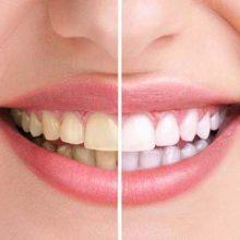 12 Receitas caseiras e dicas para clarear os dentes